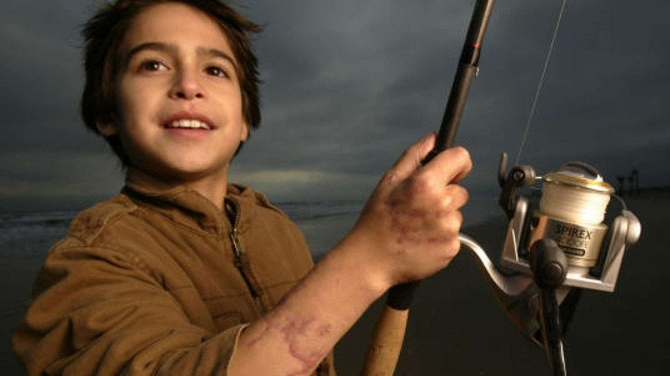 Aaron Perez - Shark Attack Survivor