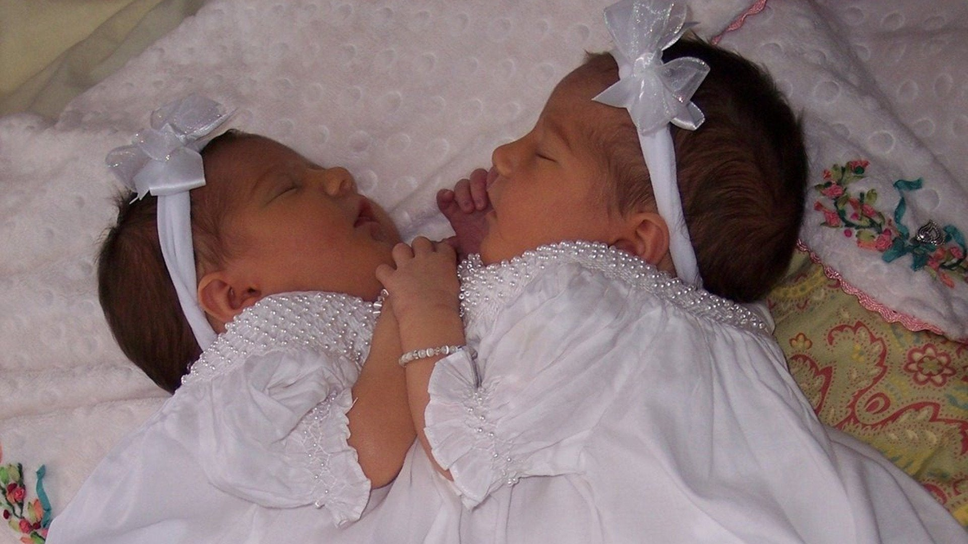 Conjoined Twins: After Separation