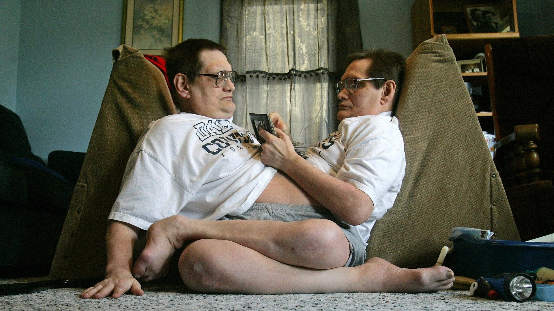 World's Oldest Conjoined Twins Move Home