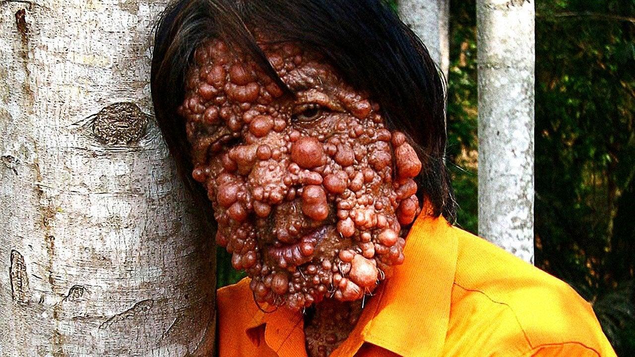 Bubble Skin Man